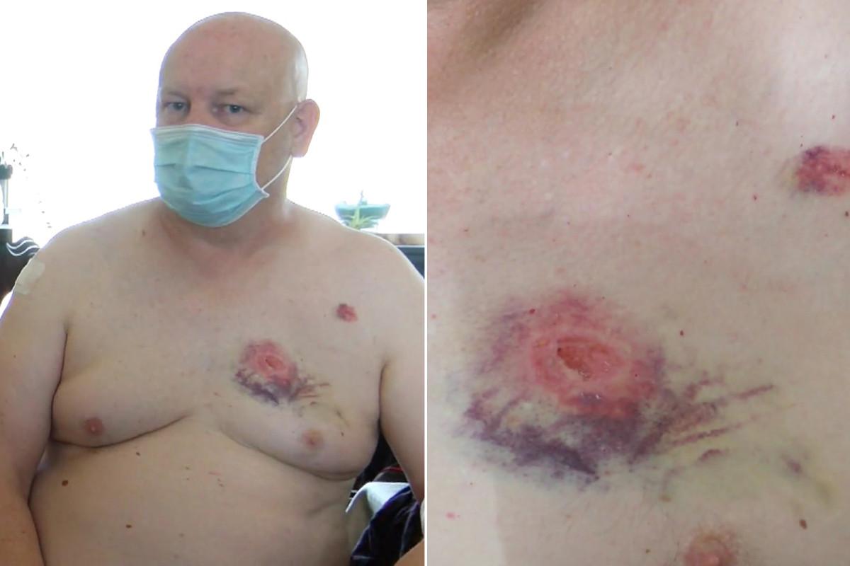 Man zegt dat hij werd gebeten door een buspassagier die weigerde een masker te dragen